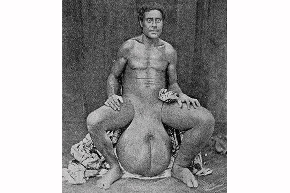 Légende de Tevaiteitei, l'amoureux abandonné Eléphantiasis du scrotum